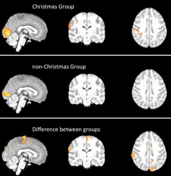 Activacion-cerebral-en-los-distintos-grupos.-BMJ-Publishing-Group-Ltd_imagelarge