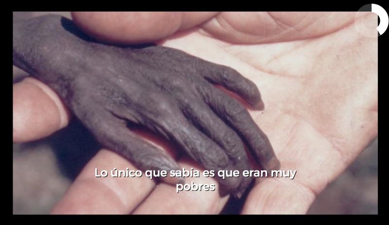 Proyecto hambre 7