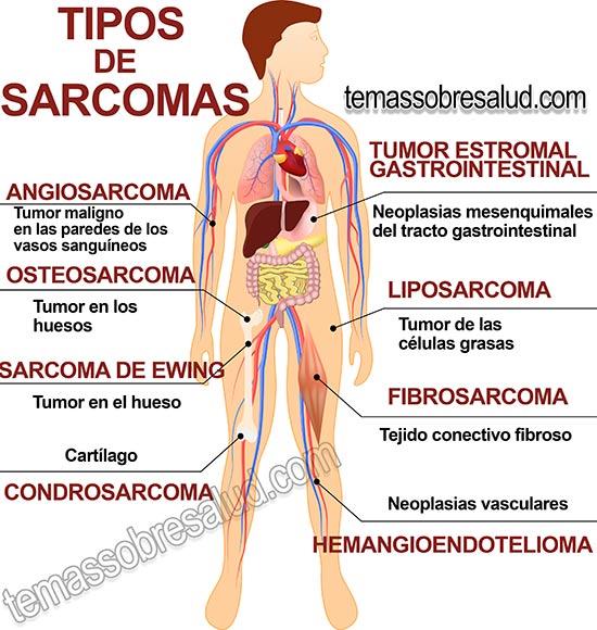Tipos-de-sarcomas